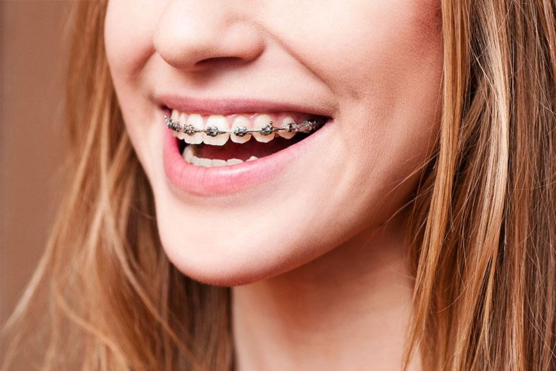 Orthodontics in Las Vegas